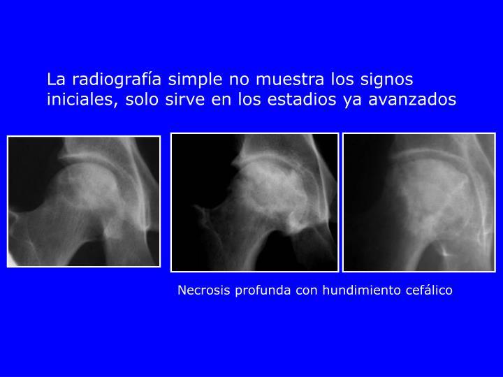 La radiografía simple no muestra los signos iniciales, solo sirve en los estadios ya avanzados
