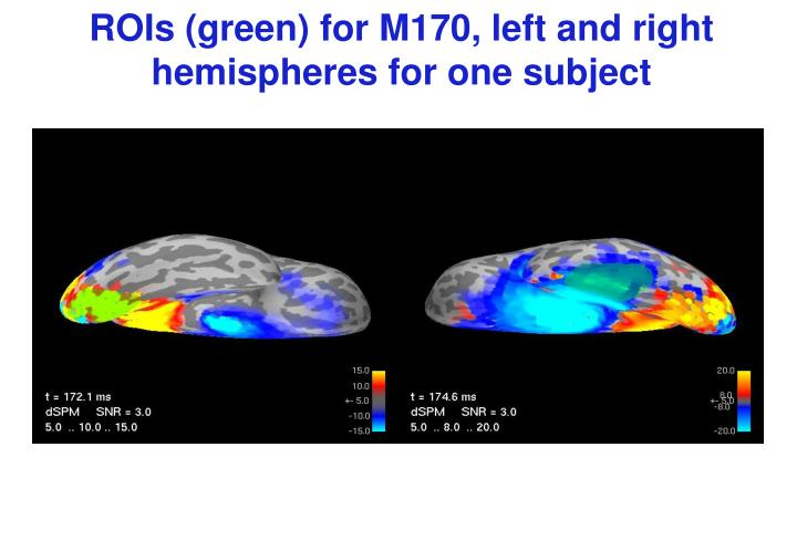 ROIs (green) for M170, left and right hemispheres for one subject