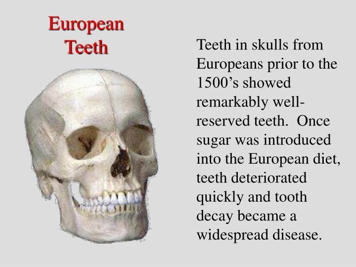 European Teeth