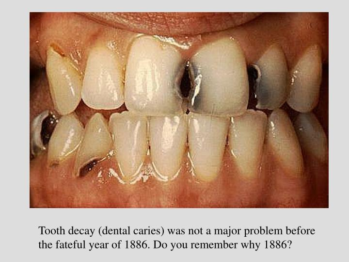 Tooth decay (dental caries) was not a major problem before the fateful year of 1886. Do you remember why 1886?