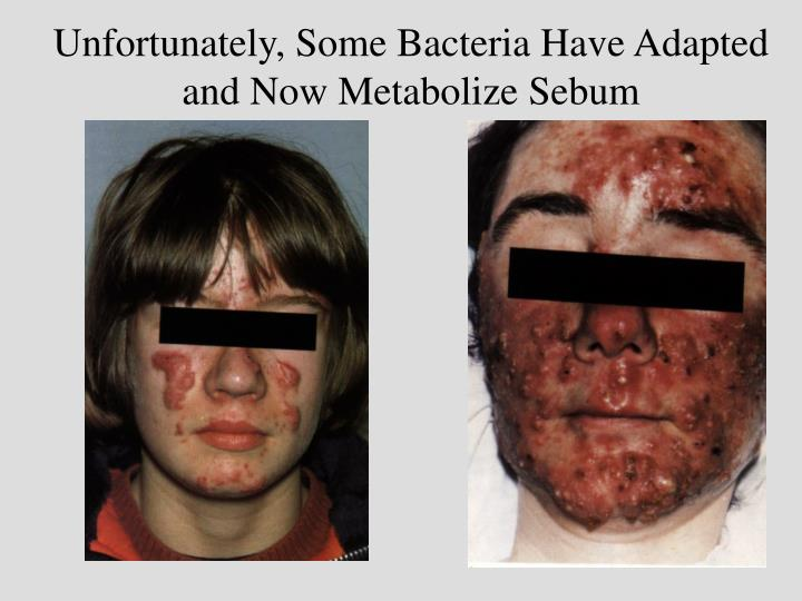 Unfortunately, Some Bacteria Have Adapted and Now Metabolize Sebum