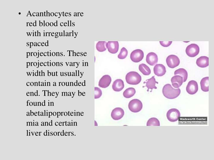 Acanthocytes are red blood cells with irregularly spaced projections. These projections vary in width but usually contain a rounded end. They may be found in abetalipoproteinemia and certain liver disorders.
