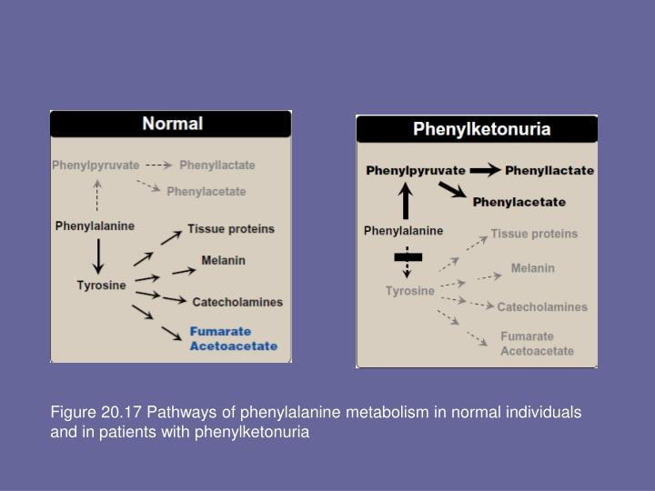 Figure 20.17 Pathways of phenylalanine metabolism in normal individuals and in patients with phenylketonuria