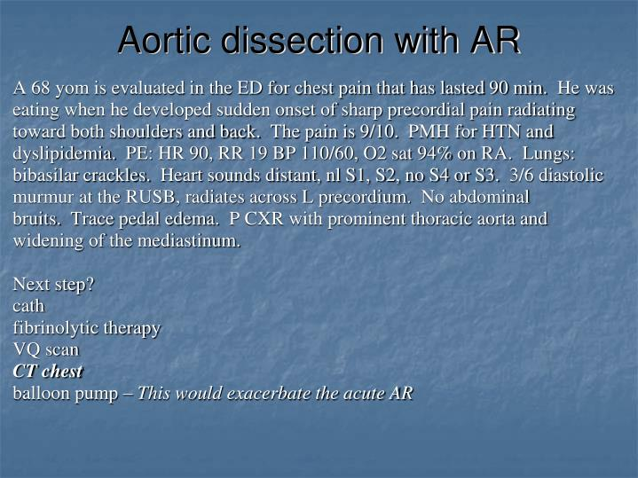 Aortic dissection with AR