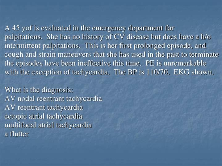 A 45 yof is evaluated in the emergency department for palpitations. She has no history of CV disease but does have a h/o intermittent palpitations. This is her first prolonged episode, and cough and strain maneuvers that she has used in the past to terminate the episodes have been ineffective this time. PE is unremarkable with the exception of tachycardia. The BP is 110/70. EKG shown.