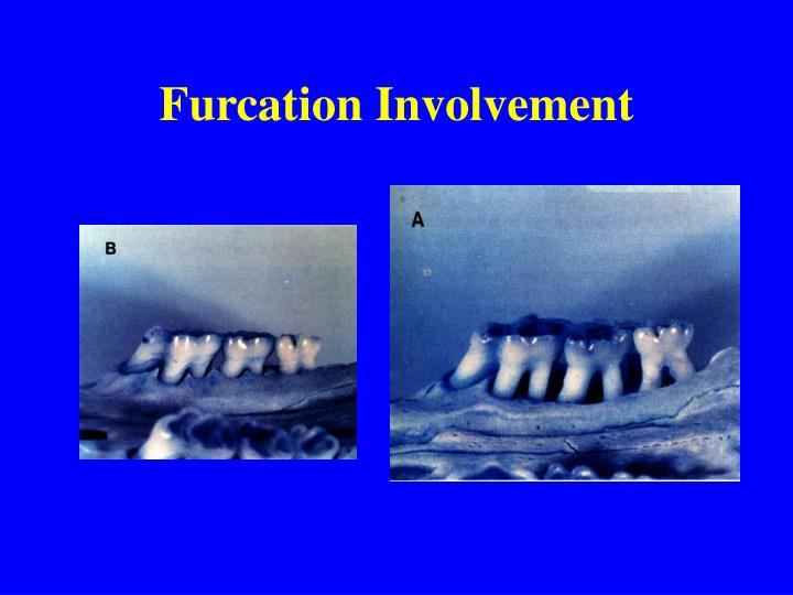 Furcation Involvement