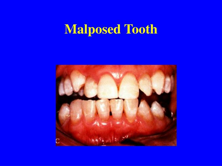 Malposed Tooth