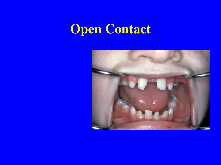 Open Contact