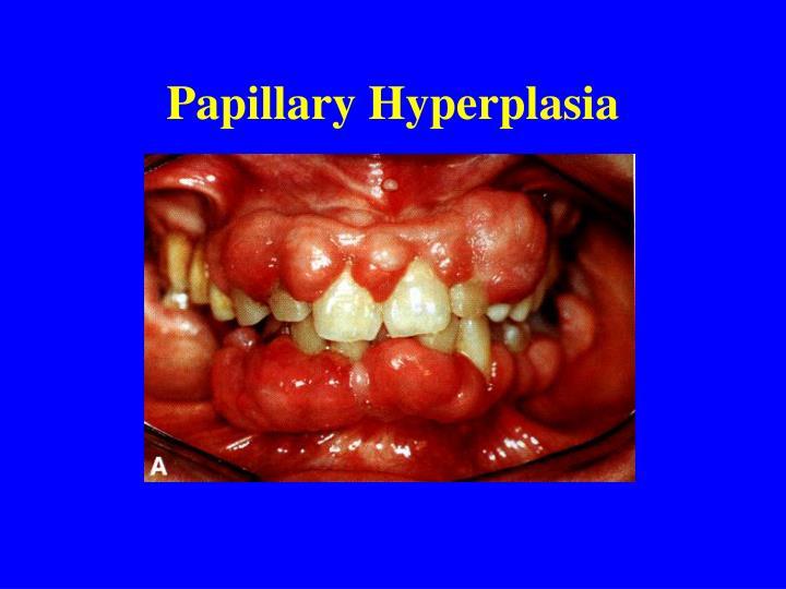 Papillary Hyperplasia