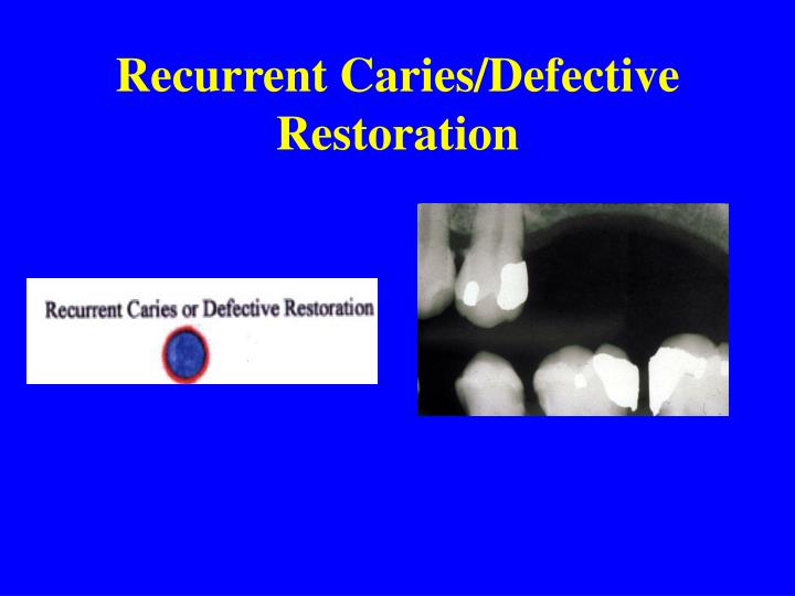 Recurrent Caries/Defective Restoration