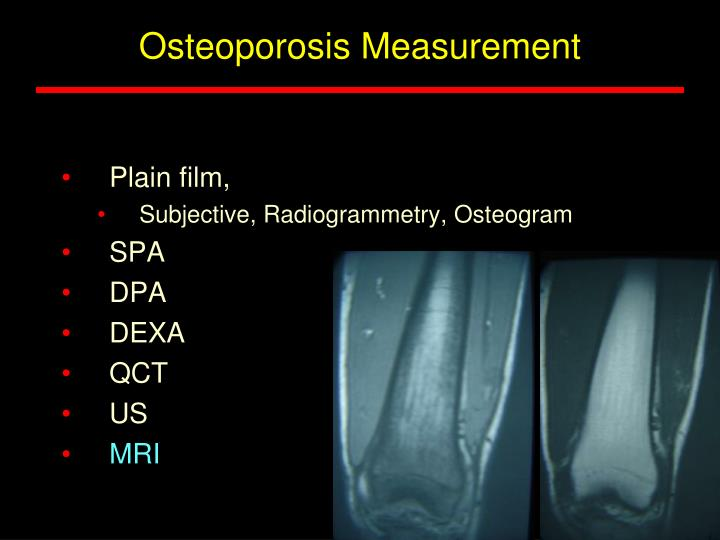 Osteoporosis Measurement