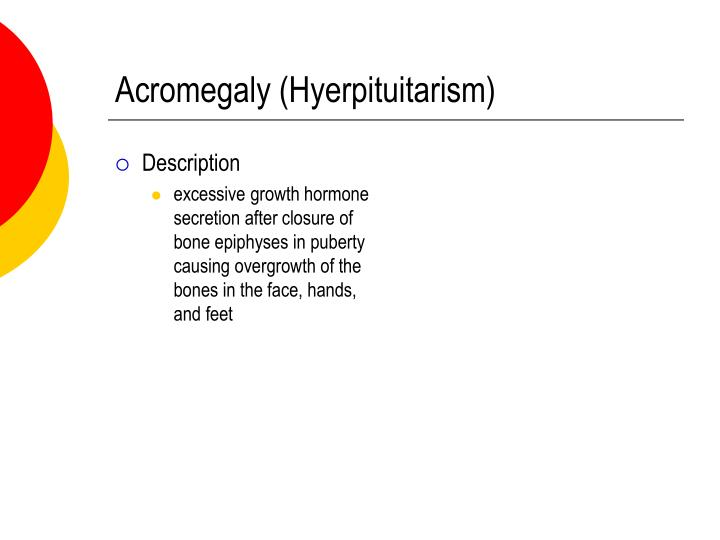 Acromegaly (Hyerpituitarism)