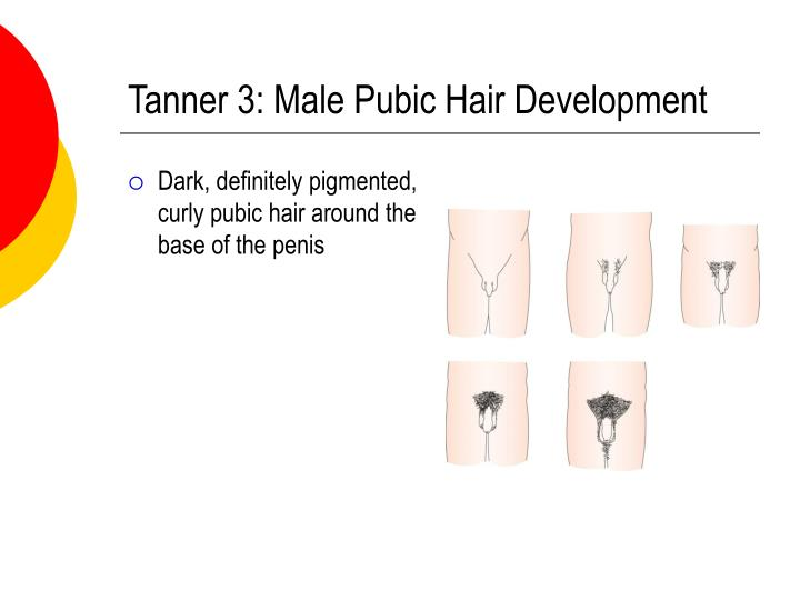 Tanner 3: Male Pubic Hair Development