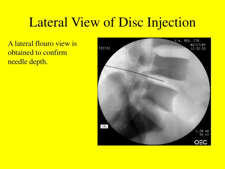 Lateral View of Disc Injection