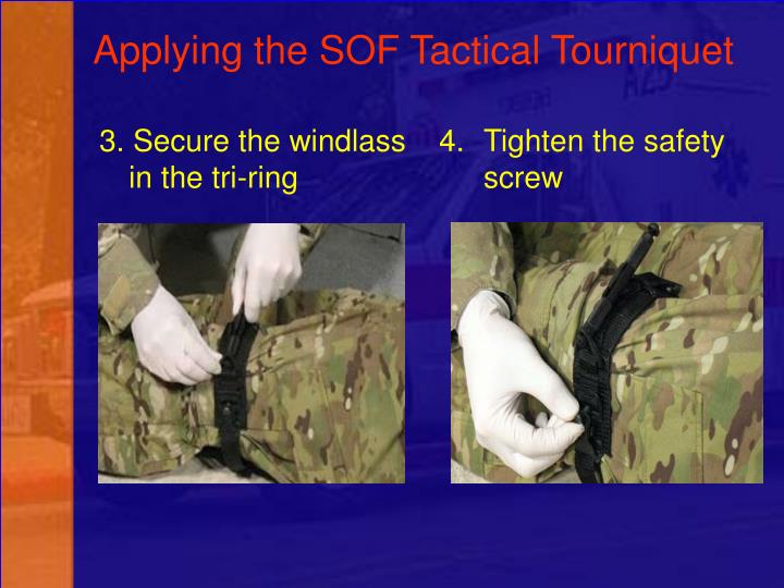 3. Secure the windlass in the tri-ring