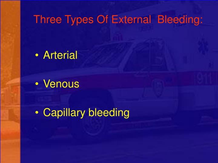 Three Types Of External  Bleeding: