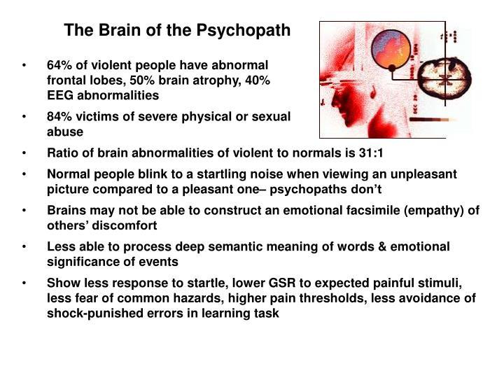 Psychopath brain