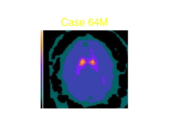 Case 64M