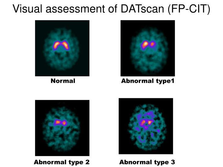 Visual assessment of DATscan (FP-CIT)