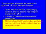 the pathologies associated with defective d galactose 1 p uridyl transferase include