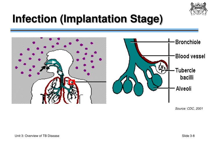 Infection (Implantation Stage)