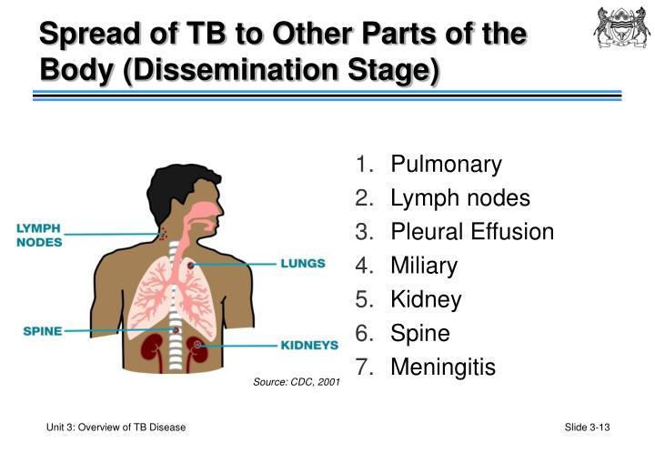 Spread of TB to Other Parts of the Body (Dissemination Stage)