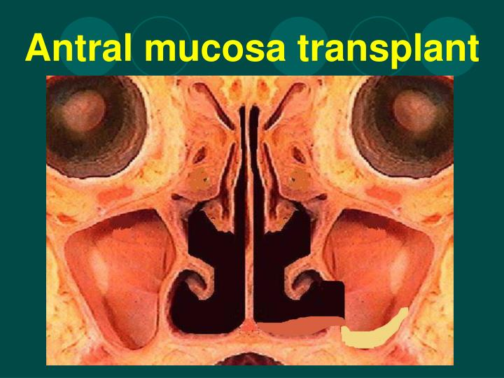 Antral mucosa transplant