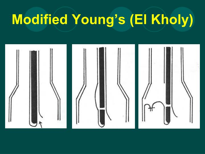 Modified Young's (El Kholy)