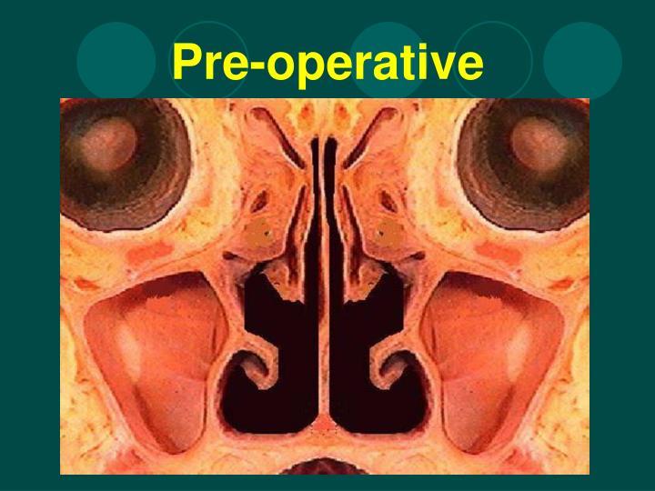 Pre-operative