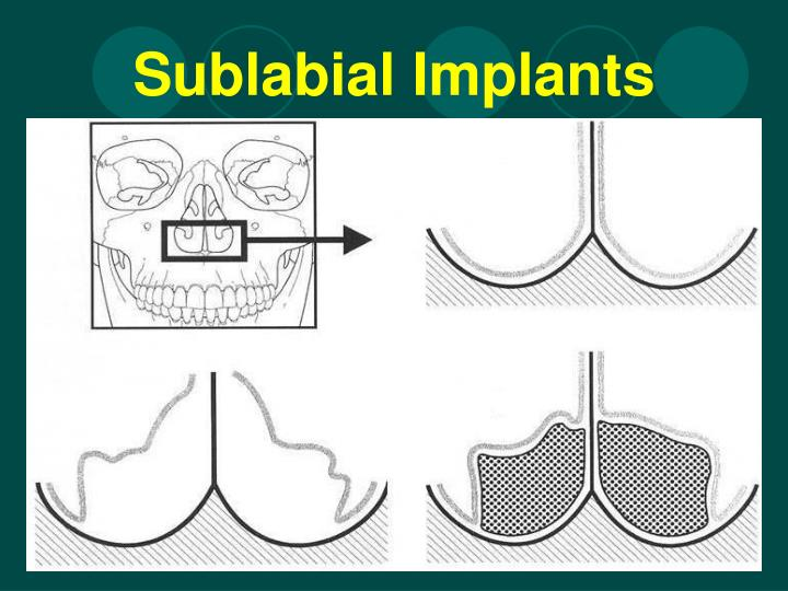 Sublabial Implants