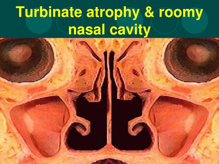 Turbinate atrophy & roomy nasal cavity