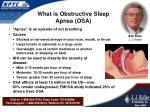 what is obstructive sleep apnea osa