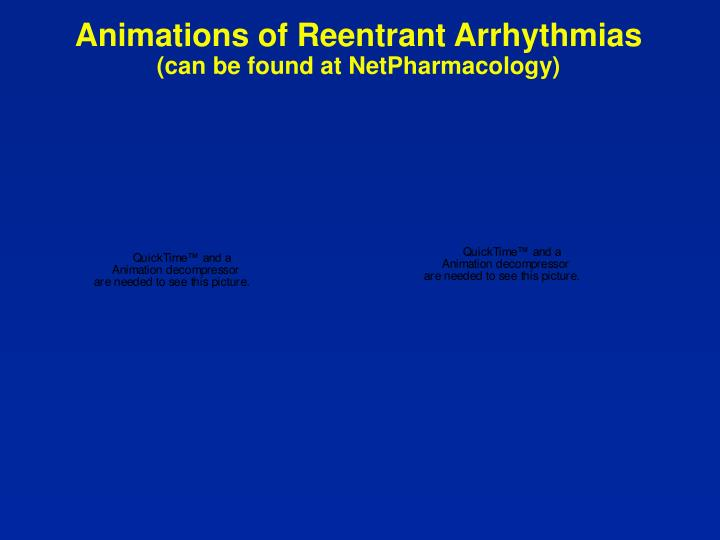 Animations of Reentrant Arrhythmias