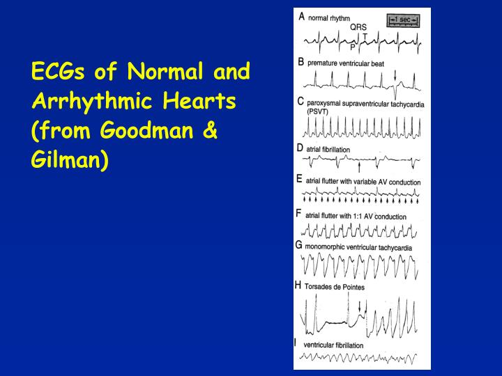 ECGs of Normal and Arrhythmic Hearts (from Goodman & Gilman)
