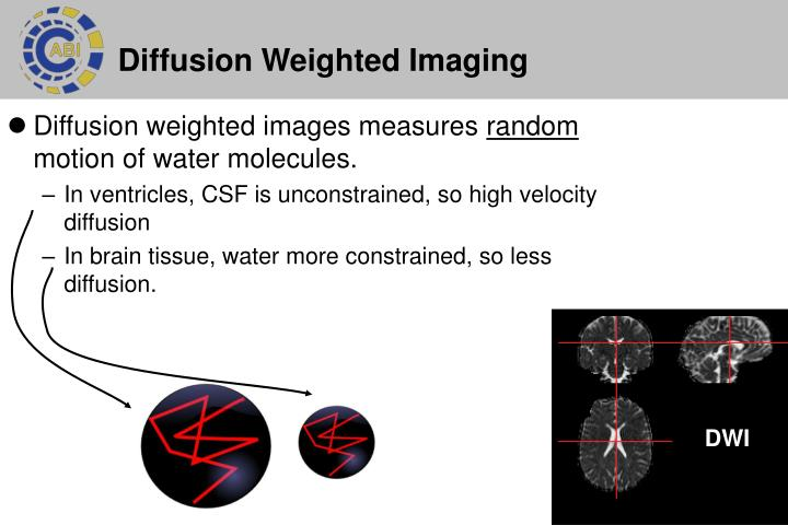 Diffusion weighted images measures