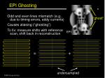 epi ghosting