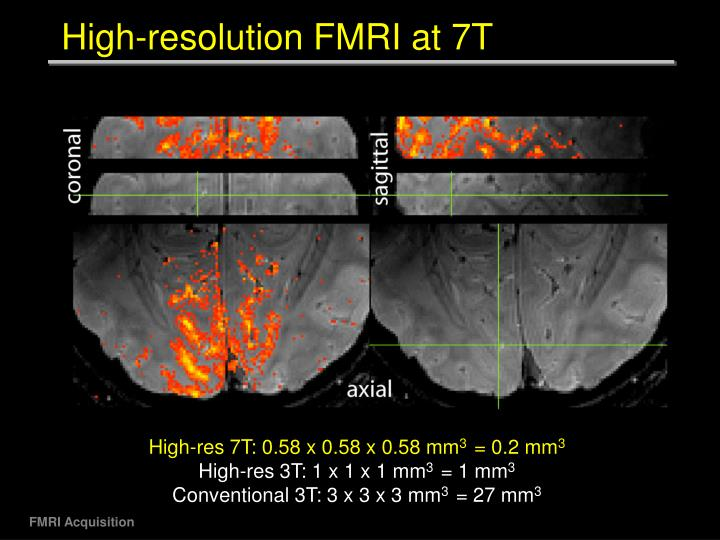 High-resolution FMRI at 7T