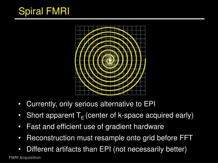 Spiral FMRI