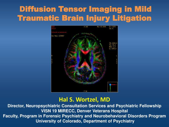 D iffusion tensor imaging in mild traumatic brain injury litigation