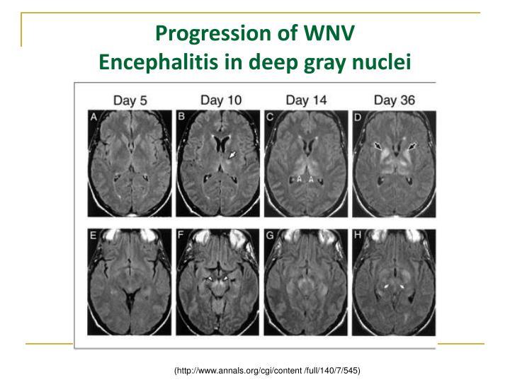 Progression of WNV