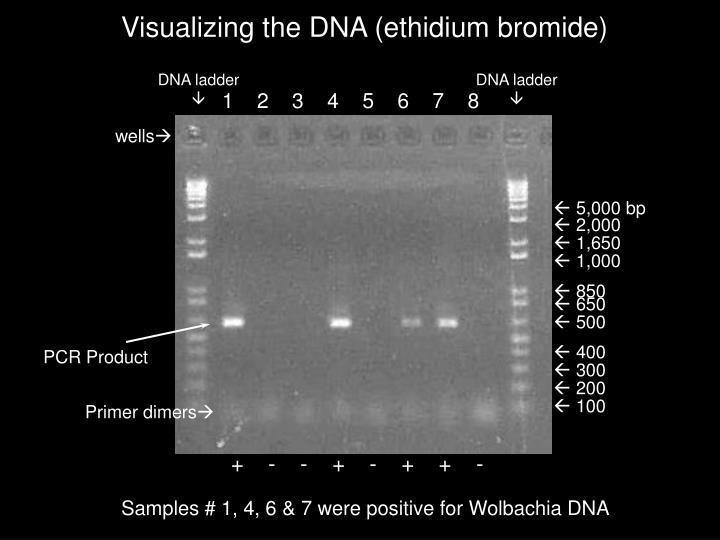 DNA ladder