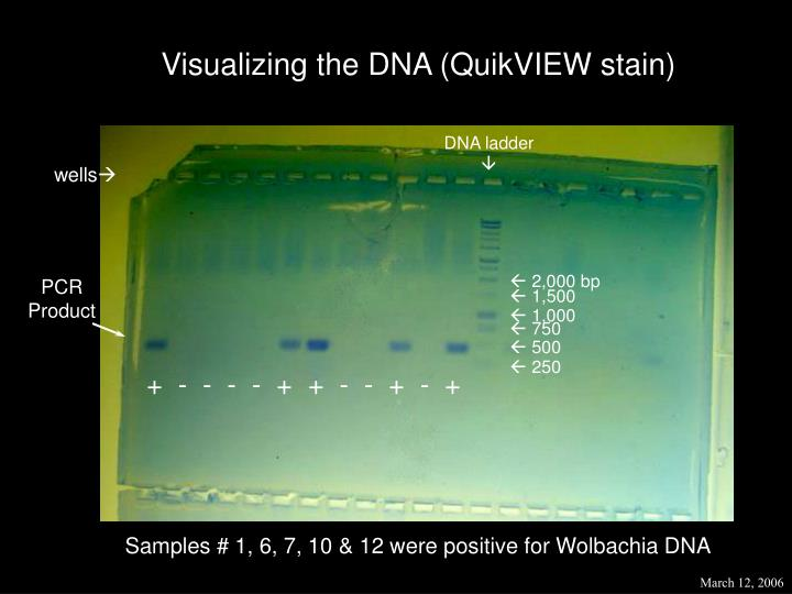 Visualizing the DNA (QuikVIEW stain)