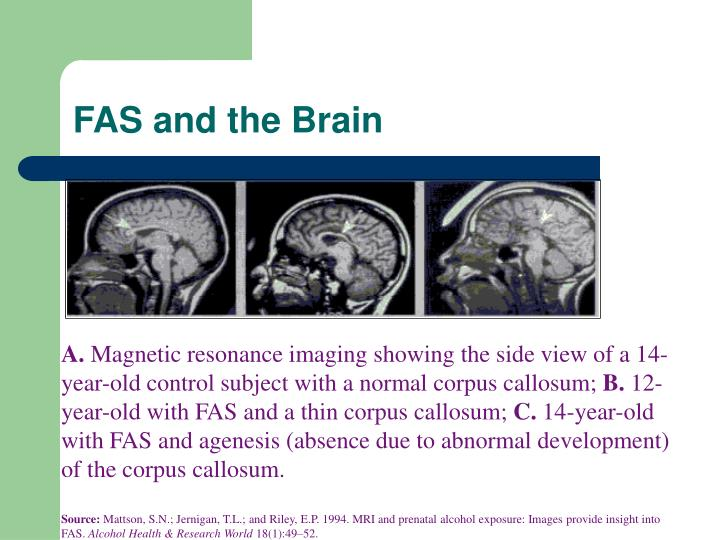 FAS and the Brain