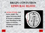 brain contusion epidural bleed