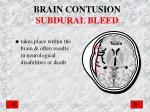 brain contusion subdural bleed
