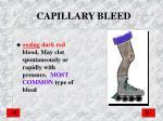 capillary bleed