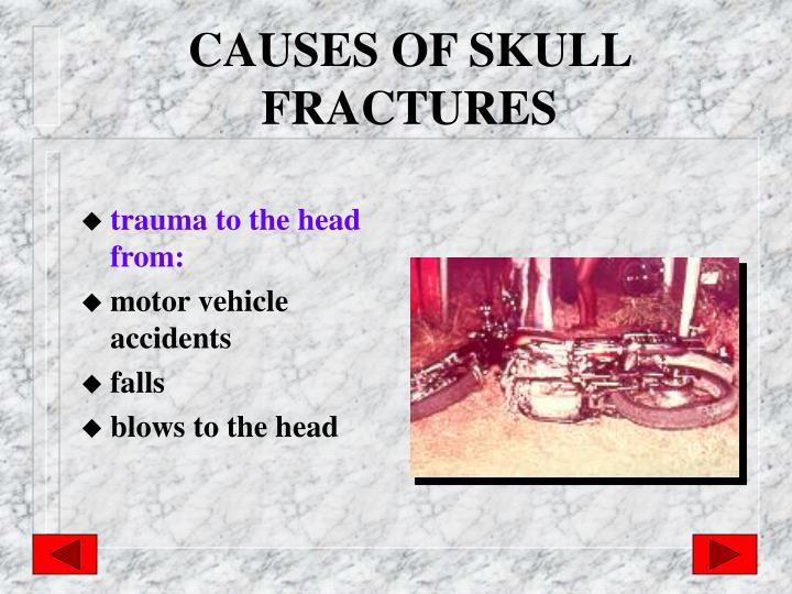 CAUSES OF SKULL FRACTURES