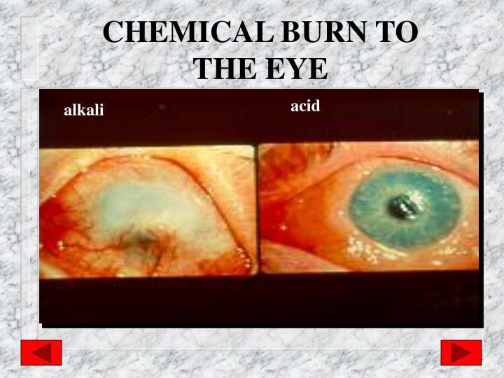 CHEMICAL BURN TO