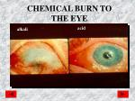 chemical burn to the eye