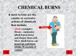 chemical burns1